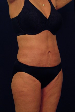 After Photo - Liposuction - Case #21072 - Oblique View