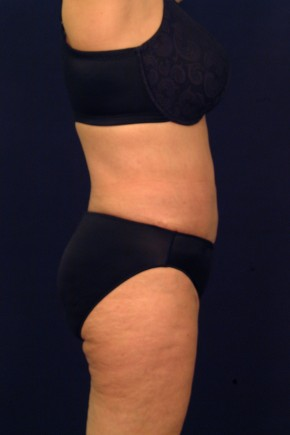 After Photo - Liposuction - Case #21072 - Lateral View