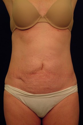 Before Photo - Tummy Tuck - Case #21073 - Abdominoplasty - Frontal View