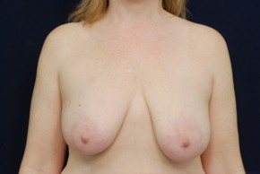 Before Photo - Breast Lift - Case #21083 - Mastopexy - Frontal View