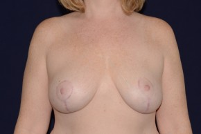After Photo - Breast Lift - Case #21083 - Mastopexy - Frontal View