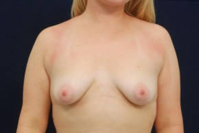 Before Photo - Breast Lift - Case #21087 - Augmentation Mastopexy - Frontal View