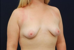 Before Photo - Breast Lift - Case #21087 - Augmentation Mastopexy - Oblique View