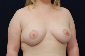 After Photo - Breast Lift - Case #21087 - Augmentation Mastopexy - Oblique View