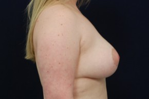 After Photo - Breast Lift - Case #21087 - Augmentation Mastopexy - Lateral View