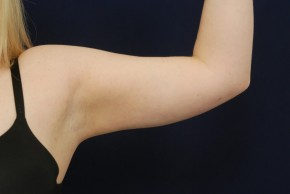 After Photo - Liposuction - Case #21088 - Upper Arm Liposuction - Frontal View