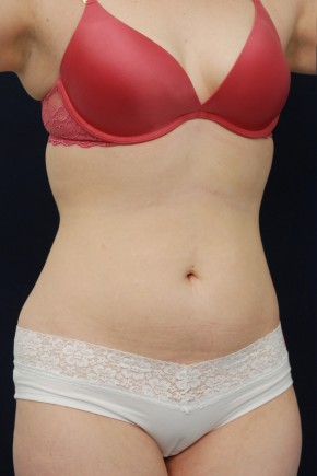 Before Photo - Liposuction - Case #21089 - Oblique View
