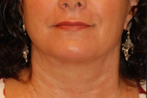 After Photo - Neck Lift - Case #21091 - Lower Facial Rejuvenation - Frontal View