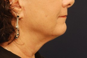 Before Photo - Neck Lift - Case #21091 - Lower Facial Rejuvenation - Lateral View