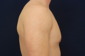 After Photo - Gynecomastia - Case #21092 - Lateral View