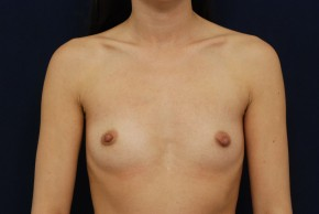 Before Photo - Breast Augmentation - Case #21093 - Frontal View