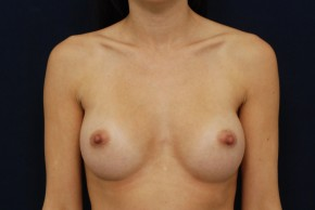 After Photo - Breast Augmentation - Case #21093 - Frontal View