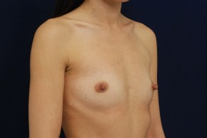 Before Photo - Breast Augmentation - Case #21093 - Oblique View