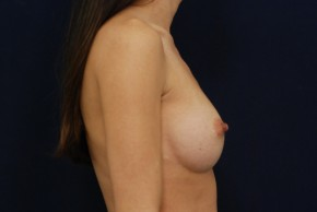 After Photo - Breast Augmentation - Case #21093 - Lateral View