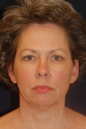 Before Photo - Facial Rejuvenation - Case #21095 - Full Facial Rejuvenation - Frontal View