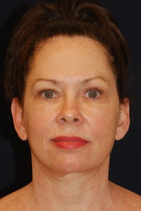 After Photo - Facial Rejuvenation - Case #21095 - Full Facial Rejuvenation - Frontal View