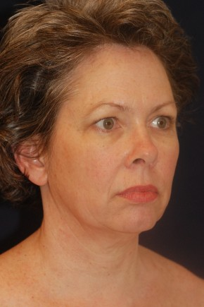 Before Photo - Facial Rejuvenation - Case #21095 - Full Facial Rejuvenation - Oblique View