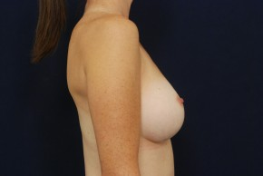 After Photo - Breast Augmentation - Case #21096 - Lateral View