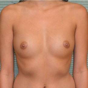 Before Photo - Breast Augmentation - Case #21108 - Breast Augmentation with Mentor MemoryGel smooth round 350cc high profile - Frontal View
