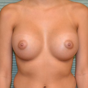 After Photo - Breast Augmentation - Case #21108 - Breast Augmentation with Mentor MemoryGel smooth round 350cc high profile - Frontal View