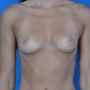 Before Photo - Breast Augmentation - Case #21109 - Breast Augmentation with Sientra 405cc smooth round gel moderate high projection - Frontal View