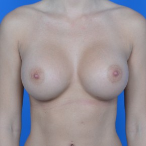 After Photo - Breast Augmentation - Case #21109 - Breast Augmentation with Sientra 405cc smooth round gel moderate high projection - Frontal View