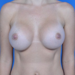 After Photo - Breast Augmentation - Case #21110 - Breast Augmentation with Sientra 385cc smooth round high projection silicone gel - Frontal View
