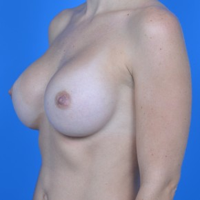 After Photo - Breast Augmentation - Case #21110 - Breast Augmentation with Sientra 385cc smooth round high projection silicone gel - Oblique View