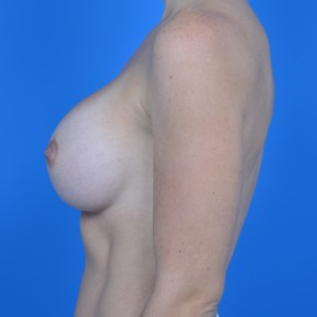 After Photo - Breast Augmentation - Case #21110 - Breast Augmentation with Sientra 385cc smooth round high projection silicone gel - Lateral View