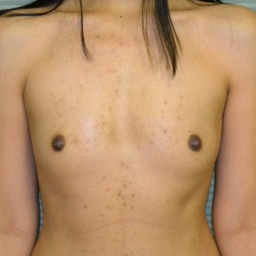 Before Photo - Breast Augmentation - Case #21111 - Breast Augmentation with Mentor Memorygel 325cc high profile smooth round gel - Frontal View