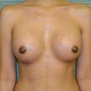 After Photo - Breast Augmentation - Case #21111 - Breast Augmentation with Mentor Memorygel 325cc high profile smooth round gel - Frontal View