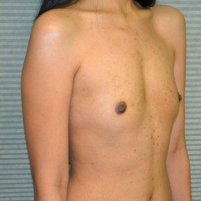 Before Photo - Breast Augmentation - Case #21111 - Breast Augmentation with Mentor Memorygel 325cc high profile smooth round gel - Oblique View