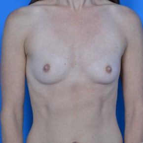 Before Photo - Breast Augmentation - Case #21112 - Breast Augmentation with Natrelle Inspira 265cc SRF  silicone gel breast implants - Frontal View