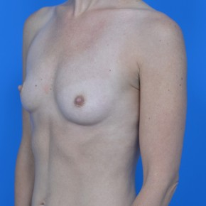 Before Photo - Breast Augmentation - Case #21112 - Breast Augmentation with Natrelle Inspira 265cc SRF  silicone gel breast implants - Oblique View