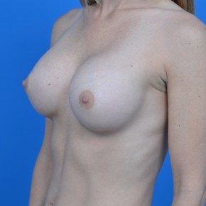 After Photo - Breast Augmentation - Case #21112 - Breast Augmentation with Natrelle Inspira 265cc SRF  silicone gel breast implants - Oblique View