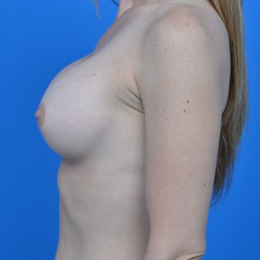 After Photo - Breast Augmentation - Case #21112 - Breast Augmentation with Natrelle Inspira 265cc SRF  silicone gel breast implants - Lateral View