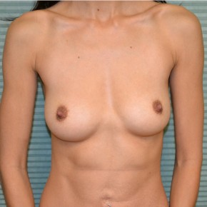 Before Photo - Breast Augmentation - Case #21113 - Breast Augmentation with Sientra 300cc moderate projection smooth round gel breast implants - Frontal View