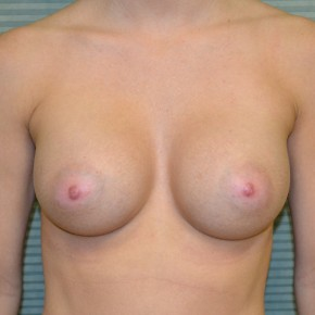 After Photo - Breast Augmentation - Case #21115 - Breast Augmentation with 350cc Mentor MemoryGel high profile smooth round silicone gel breast implants. - Frontal View