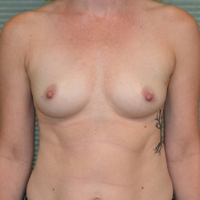 Before Photo - Breast Augmentation - Case #21116 - Breast Augmentation with Mentor MemoryGel Smooth Round Moderate Plus Profile 325cc gel breast implants. - Frontal View