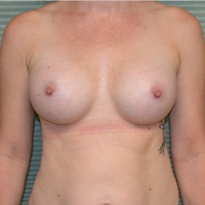 After Photo - Breast Augmentation - Case #21116 - Breast Augmentation with Mentor MemoryGel Smooth Round Moderate Plus Profile 325cc gel breast implants. - Frontal View