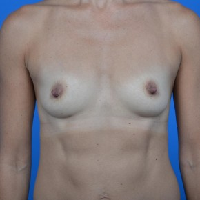 Before Photo - Breast Augmentation - Case #21118 - Breast Augmentation with Natrelle Inspira Smooth Round Gel breast implants, 325cc SRF. - Frontal View