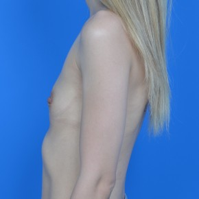 Before Photo - Breast Augmentation - Case #21119 - Breast Augmentation with Sientra 315cc moderate-high profile smooth round gel implants. - Lateral View