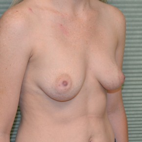 Before Photo - Breast Augmentation - Case #21121 - Breast Augmentation with Sientra 375cc high projection smooth round gel breast implants - Oblique View