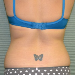 Before Photo - Tummy Tuck - Case #21124 - Tummy Tuck and liposuction of flanks - Posterior View
