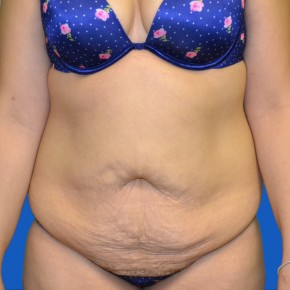 Before Photo - Tummy Tuck - Case #21127 - Frontal View