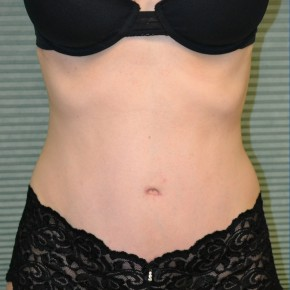 After Photo - Tummy Tuck - Case #21129 - Frontal View