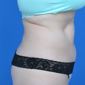Before Photo - Tummy Tuck - Case #21130 - Oblique View