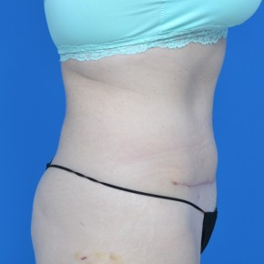 After Photo - Tummy Tuck - Case #21130 - Oblique View