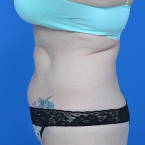 Before Photo - Tummy Tuck - Case #21130 - Lateral View