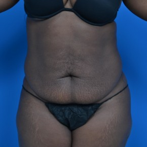 Before Photo - Tummy Tuck - Case #21131 - Frontal View